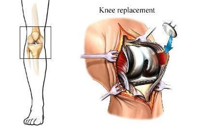 Knee Replacements Turn Back Time With Rheumatoid Arthritis - AIPHC