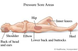 Pressure Sore Areas