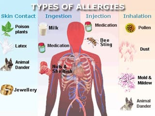 How To Prevent Food Allergies In Infants Aiphc Home Care