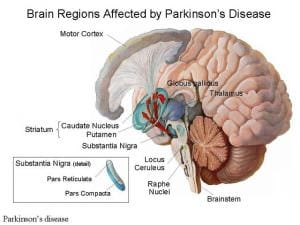 Brain Regions Affected by Parkinson's